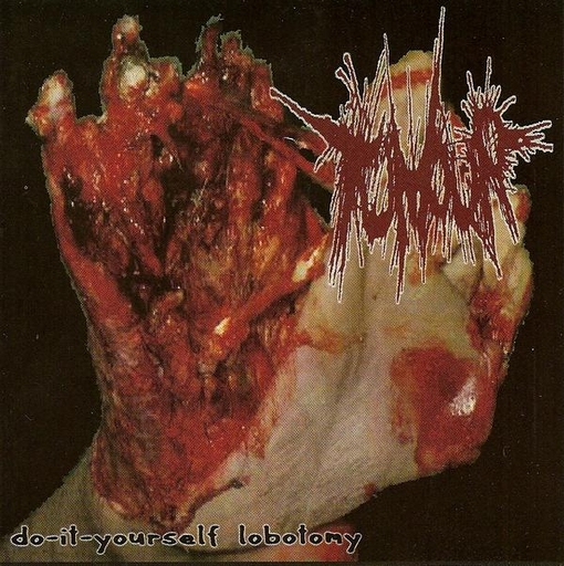 TUMOUR / ANAL PENETRATION split CD