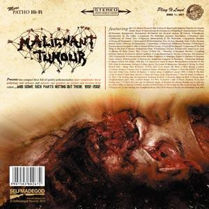 MALIGNANT TUMOUR - And Some Sick Parts Rotting Out There... 2xCD