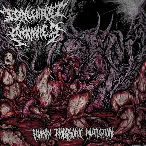CONGENITAL ANOMALIES - Human Embryonic Mutilation CD